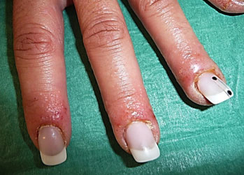 Symptoms Of Allergic Reaction To Gel Nails Best 2018